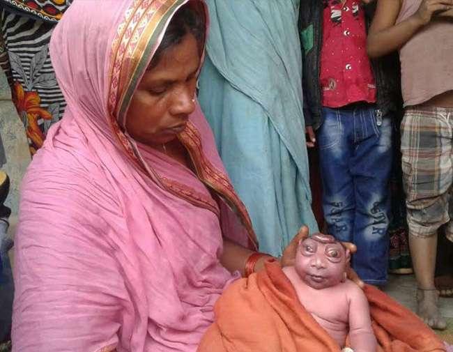 बिहार: विचित्र बच्चे का फिर हुआ जन्म, डॉक्टरों ने कहा-गंभीर बीमारी