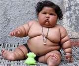 आठ माह की इस बच्ची का वजन है 20 किग्रा. जन्म के समय थी सामान्य