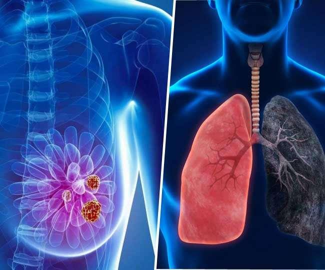 Image result for महिलाओं के लिए ब्रेस्ट कैंसर से ज्यादा घातक साबित हो रही यह बीमारी