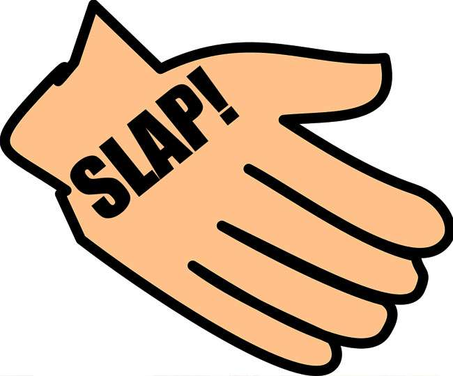 One Slap, Arm, A Slap, Finger PNG Transparent Clipart ... |Hand Slapping Workers