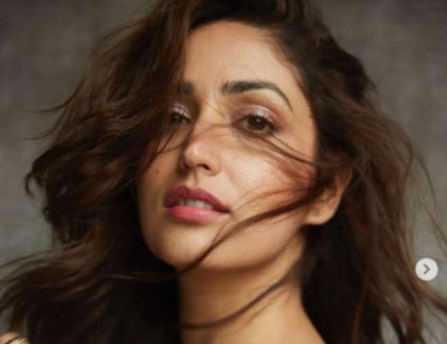 Yami Gautam opens on her skin condition. Photo- Instagram
