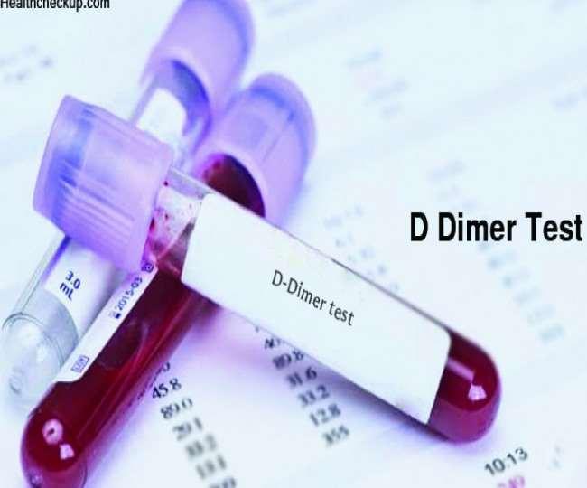 डी डायमर टेस्ट बताएगा खून के थक्के तो नहीं बन रहे।