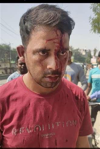 आईटीबीपी जवान को लोहे की राड मारकर जख्मी किया।