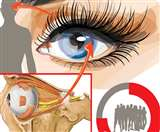 हो जाएं सावधान: युवाओं की नजरें हो रहीं धुंधली, 80 फीसद के आंखों के विजन मसल्स कमजोर