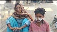 आठ साल के बच्चे का चेहरा पेट्रोल से जलाने का आरोप