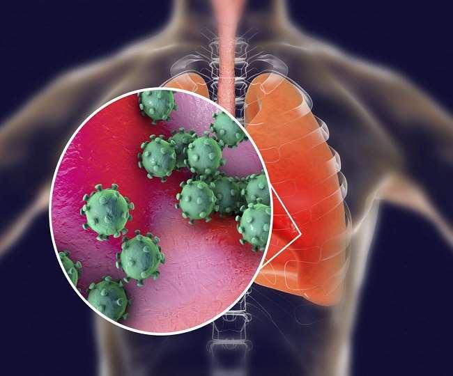कोरोना फेफड़ों के बड़े हिस्से को प्रभावित कर रहा है।