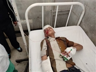 अस्पताल की ढाई मंजिल से गिरा बच्चा, आइजीएमसी रेफर