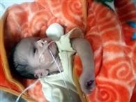 सरकारी अस्पताल के पालने में मिली बच्ची की हालत में सुधार
