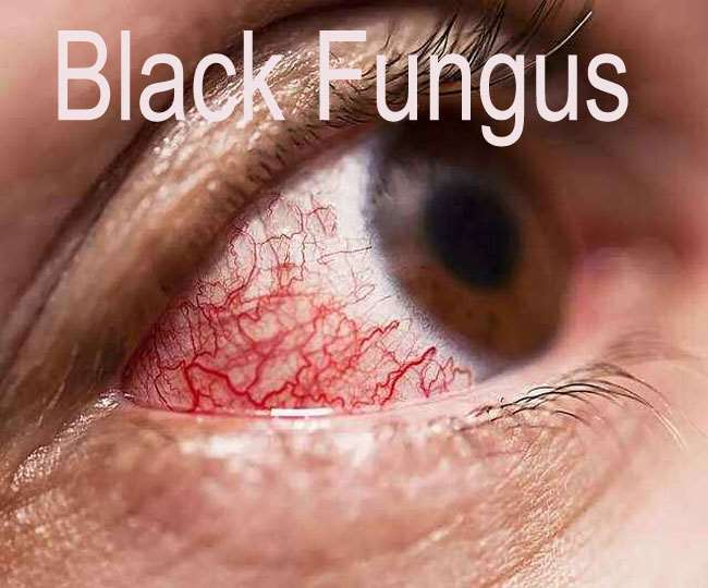 Black Fungus Symptoms and Treatment समय पर उपचार होने से आंखों की रोशनी बचाई जा सकती है।