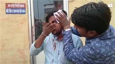 एफएसडीए की टीम पर हमला, चालक लहूलुहान