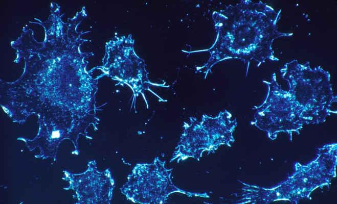 इजराइली वैज्ञानिकों का दावा,एक साल के भीतर खोज लेंगे कैंसर को जड़ से खत्म करने का इलाज