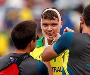 Aus vs Eng सेमीफाइनल मैच में टला हादसा, बाउंसर लगने से कंगारु बल्लेबाज के निकलने लगा खून