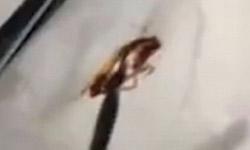 जब महिला के कान से निकला जिंदा कॉकरोच
