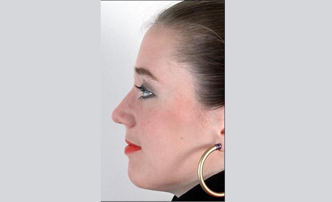 नाक का सवाल! नाक के आकार खोलते हैं आपके ये राज