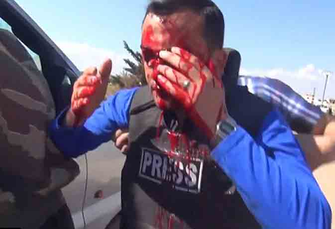 सीरियन टीवी रिपोर्टर पर हमला घायल